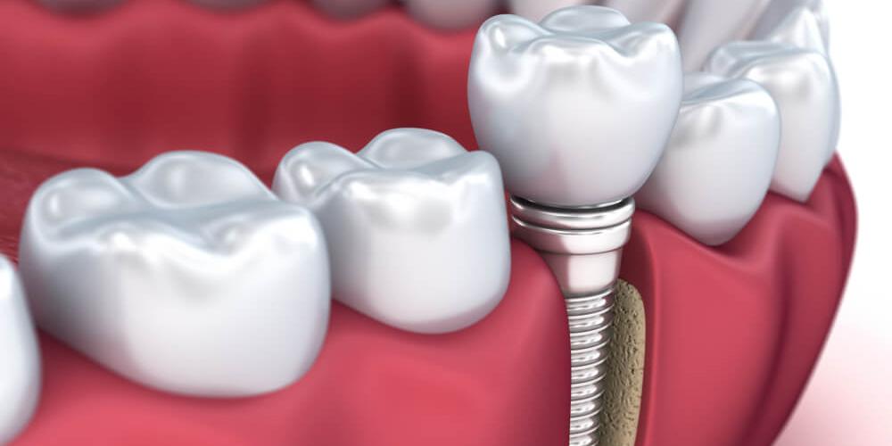 implant-Nedir.jpg