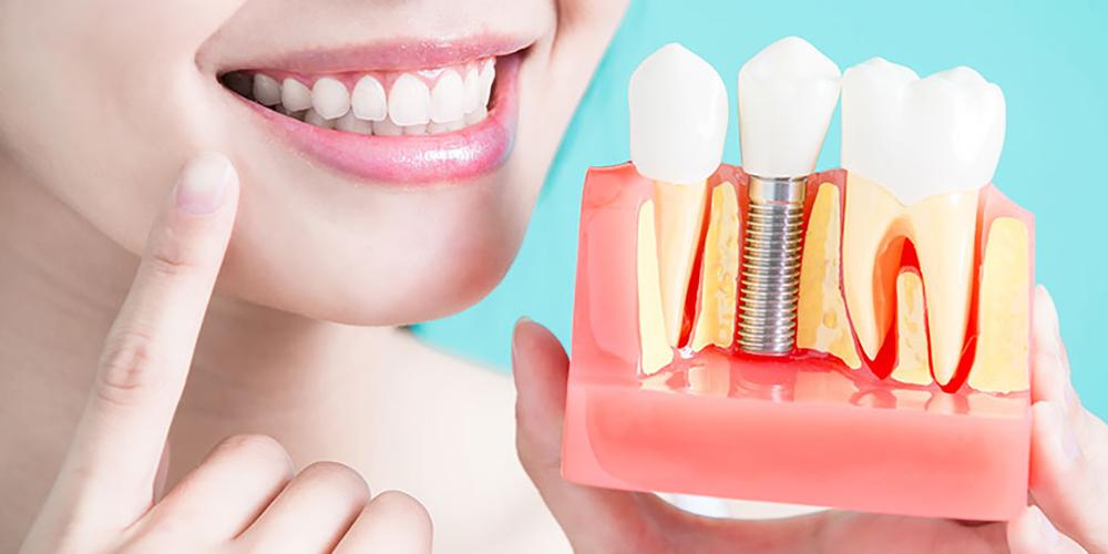 implantlar-Hakkinda.jpg